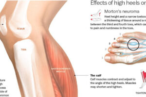 The Unhealthy Consequences of Wearing High Heels 1